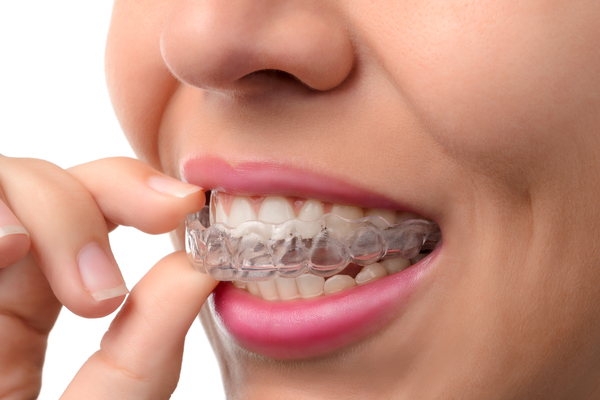 Invisalign is a alternative option to traditional braces