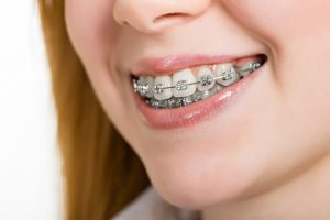 traditional steel braces